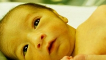 Mẹ cần biết gì về bệnh vàng da ở trẻ?