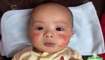 Bệnh chàm khô ở trẻ em! Nguyên nhân và cách chữa trị hiệu quả!