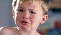 """Nguyên tắc """"4 KHÔNG"""" giúp đẩy lùi nhanh chóng bệnh sốt phát ban ở trẻ"""