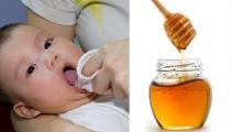 Dùng mật ong để trị tưa lưỡi ở trẻ sơ sinh – giúp con hay hại con?