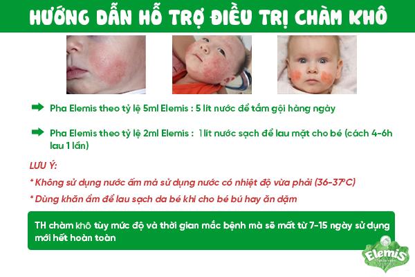 Cách chữa bệnh chàm khô ở trẻ em bằng Nước tắm thảo dược Elemis