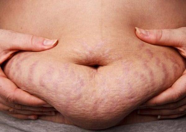 Những vết rạn da xấu xí ở vùng bụng của mẹ sau sinh.
