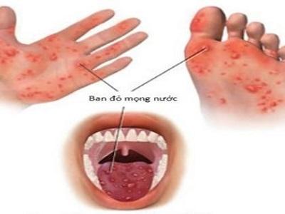 Chân tay miệng là bệnh do virus gây ra và rất dễ lây lan thành dịch.