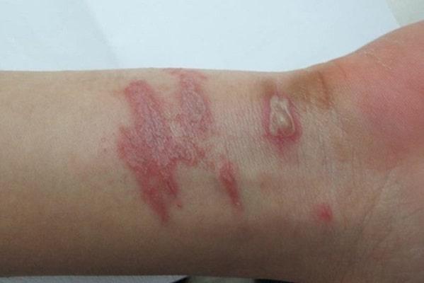 Tổn thương trên da do kiến ba khoang gây ra