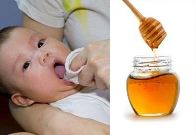 Dùng mật ong trị tưa lưỡi ở trẻ sơ sinh gây tác hại khôn lường.