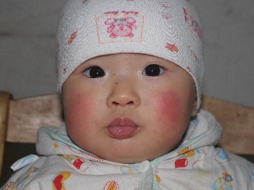 Khô da là một triệu chứng thường gặp ở trẻ sơ sinh vào mùa đông.