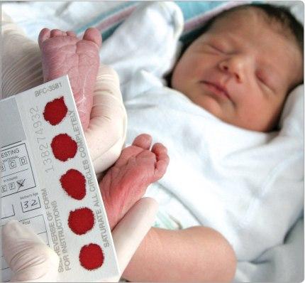 Tầm soát thiếu men G6PD cho trẻ sơ sinh.
