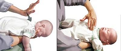 Xử trí bé sặc sữa bằng phương pháp vỗ lưng - ấn ngực.